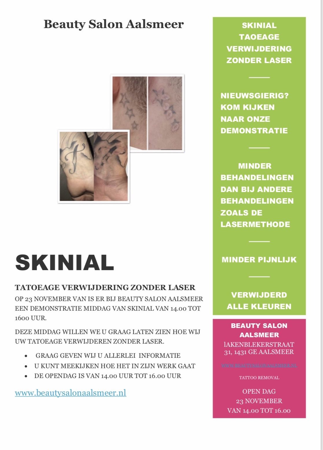 Skinial tattoo removal